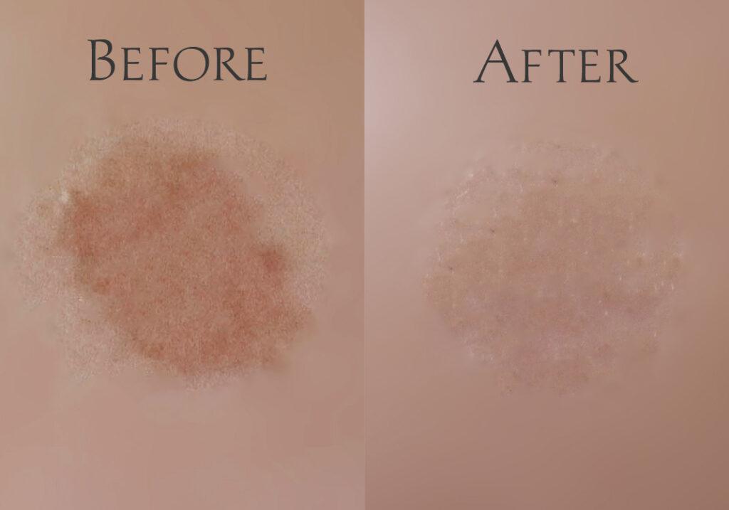 品川美容外科フォトシルクプラス1回目の照射前と照射後の比較写真